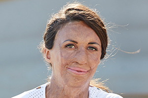 Speakers related to Gerald Coffee: Turia Pitt